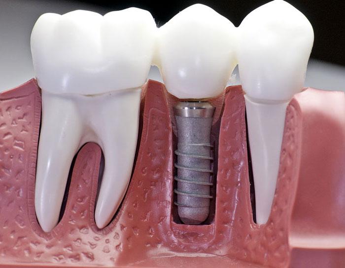 Причины и процедура удаление импланта зуба со штифтом. Опасные последствия