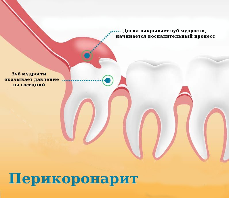 Что делать, если опухла щека, когда лезет зуб мудрости. Первая помощь