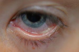 Патологические выделения из органов зрения
