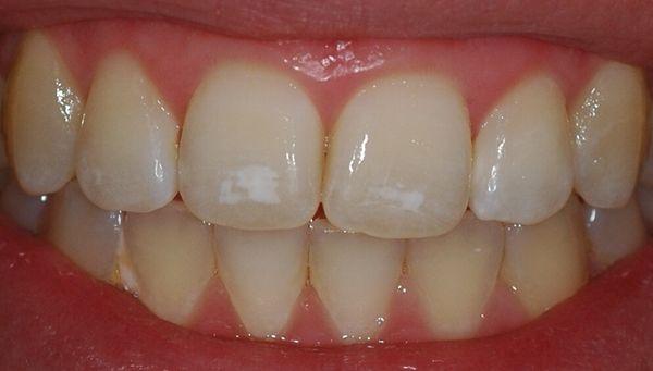 Белые пятна - первая стадия распада зубов