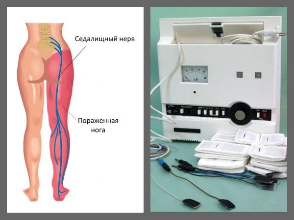 Электростимуляция помогает снять отек и болезненные напряжения в мышцах