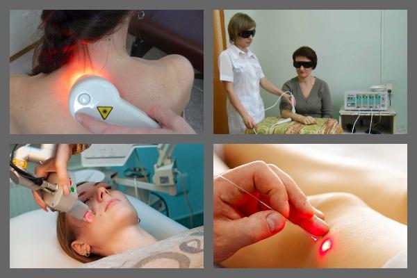 Методы лазеротерапии разнообразны