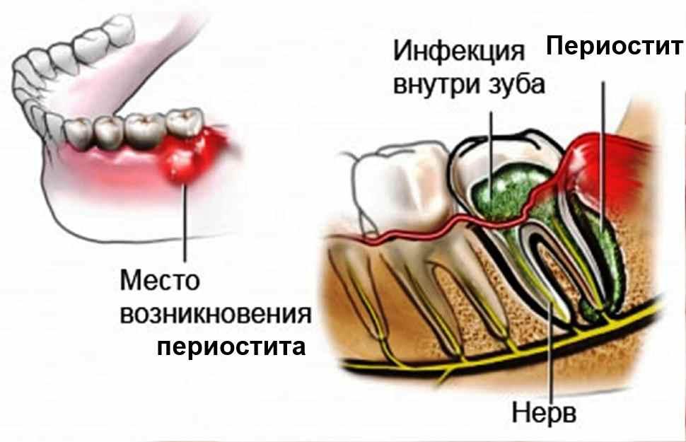 Как выглядит флюс на десне. Симптомы, классификация и лечение