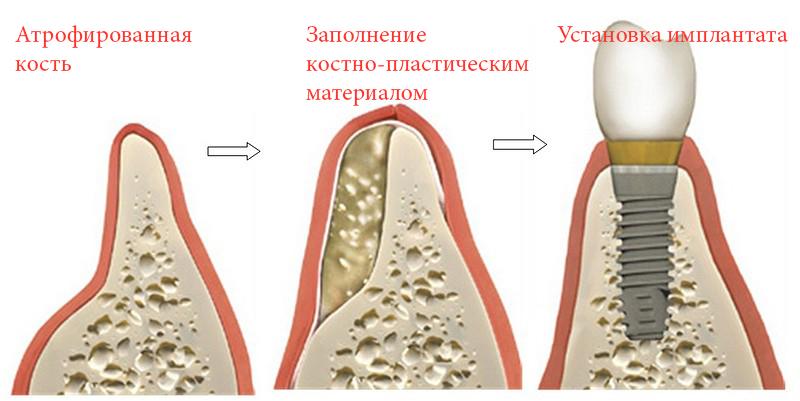 Способы наращивания костной ткани при имплантации зубов регенерация при атрофии кости