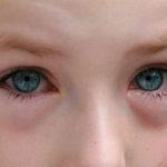 Глазные капли для детей от конъюктивита