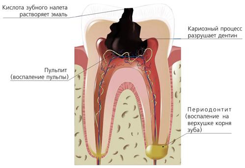 У ребенка периодонтит молочного зуба как избежать опасных последствий