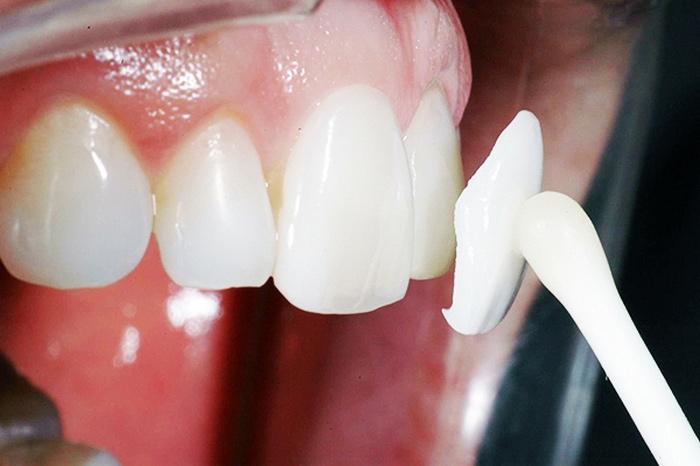 Можно ли поставить виниры на кривые зубы, для их выравнивания? Что эти накладки могут исправить