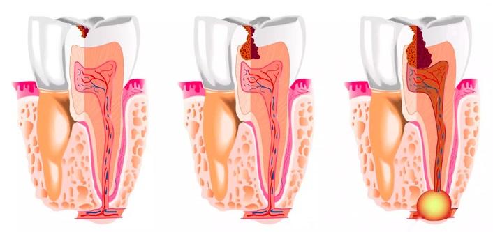 Симптомы и лечение кисты зуба. Чем опасно новообразование в ротовой полости