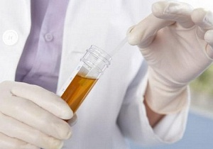 бактерии и лейкоциты в моче