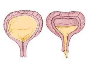 методы лечения неполного опорожнения мочевого пузыря у мужчин