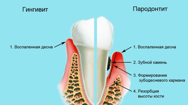 Что делать, если воспалилась десна около зуба. Причины и лечение у стоматолога и в домашних условиях
