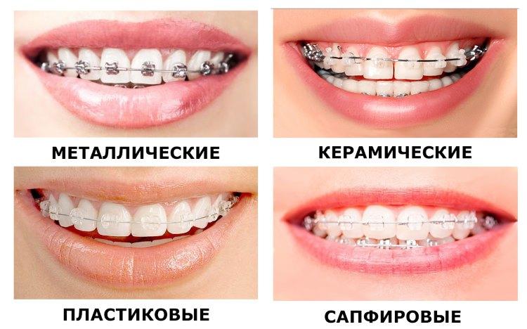 Что такое брекет-система. Что произойдет с вашими зубами после ношения брекетов