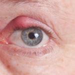 Блефарит глаза и его лечение
