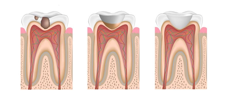 Причины и симптомы кариеса зубов узнаем, как предотвратить болезнь или избавиться от неё