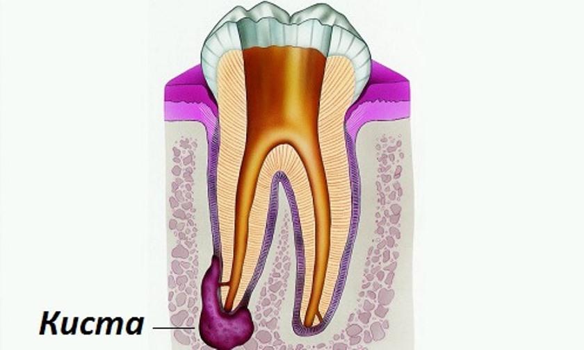 Как происходит удаление кисты зуба? Современные методы