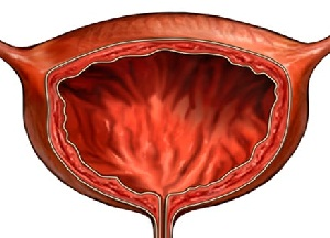 симптомы и лечение болезней мочевого пузыря