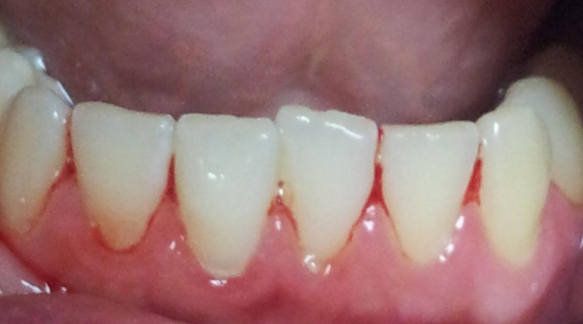 Симптомы и лечение гингивита у взрослых. Когда не обойтись без похода в стоматологию