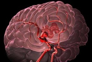 лопнувший сосуд в мозгу человека