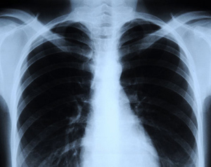 флюрография человека