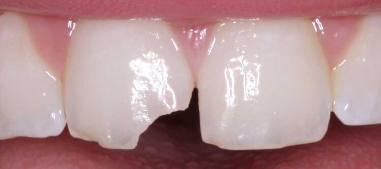 Почему у ребенка шатается молочный зуб? Что делать в этой ситуации