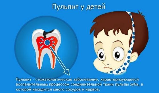 Правильное лечение пульпита молочных зубов у детей. Как не допустить ошибок
