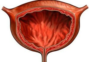 атония мочевого пузыря лечение