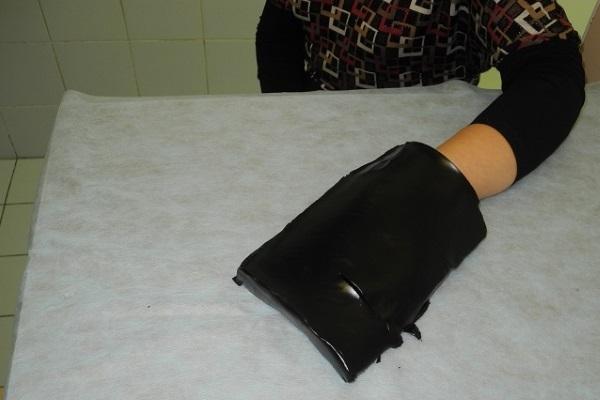 Аппликация озокерита на кисть и лучезапястный сустав