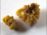 коралловидные камни в почках