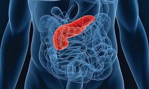 Острый геморрагический панкреатит — заболевание, характеризующееся поражением тканей всей поджелудочной железы, при котором происходит разрушение паренхимы и сосудов
