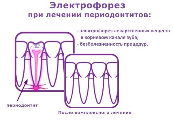 Электрофорез может применяться при лечении периодонтитов