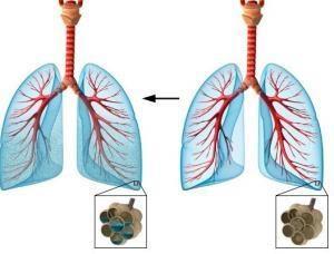 как выглядит отёк лёгких