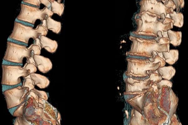 КТ позвоночника при остеохондрозе