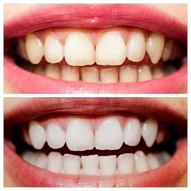 Что такое химическое отбеливание зубов. Эффективно, но не всегда безопасно