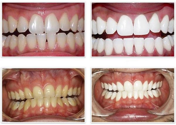 Как курильщику вернуть здоровый и привлекательный вид зубам? Способы удаления налета от курения и профилактика