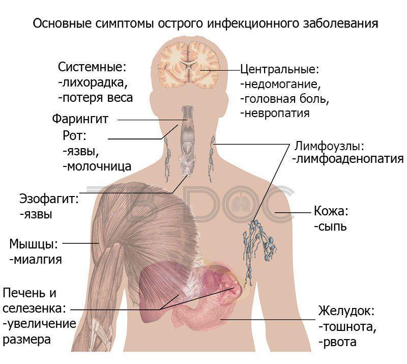 Основные симптомы острого инфекционного заболевания