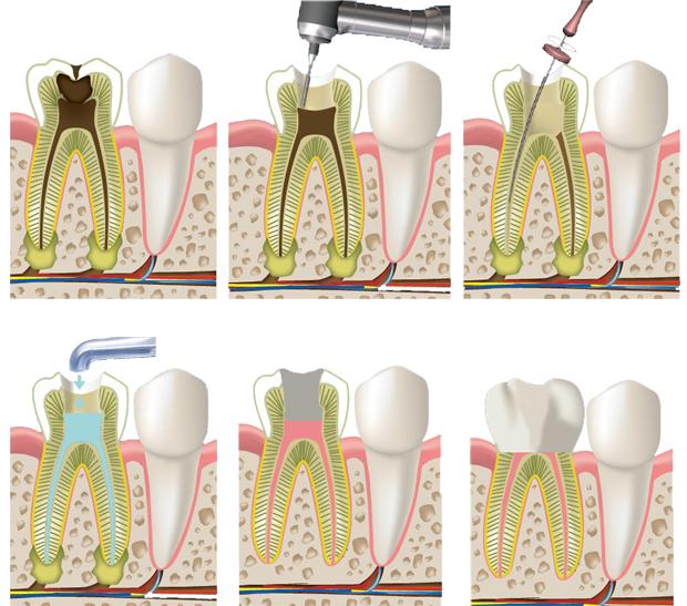 Воспалительный процесс в нерве зуба гнойный пульпит