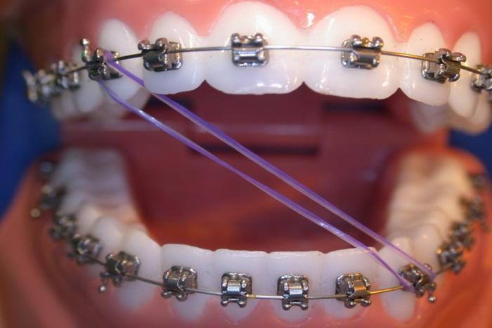 Эластики для брекетов, они же тяги, они же ортодонтические резинки. Разбираемся, зачем они нужны