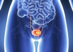 как лечить опущение мочевого пузыря у женщин