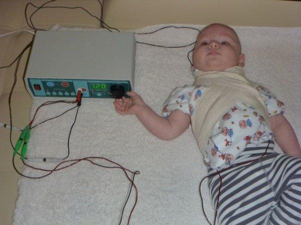 Проведение электрофореза грудничку