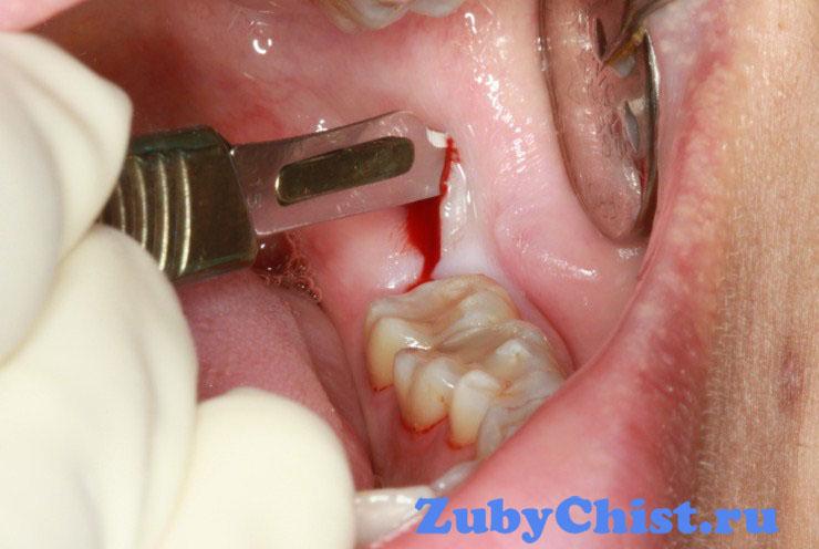 Сколько будет болеть десна, если её разрезали для роста зуба мудрости. Возможные осложнения