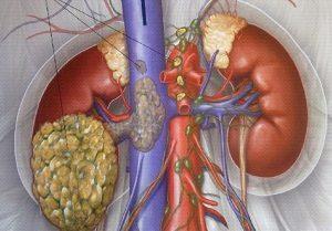 рак почки метастазы