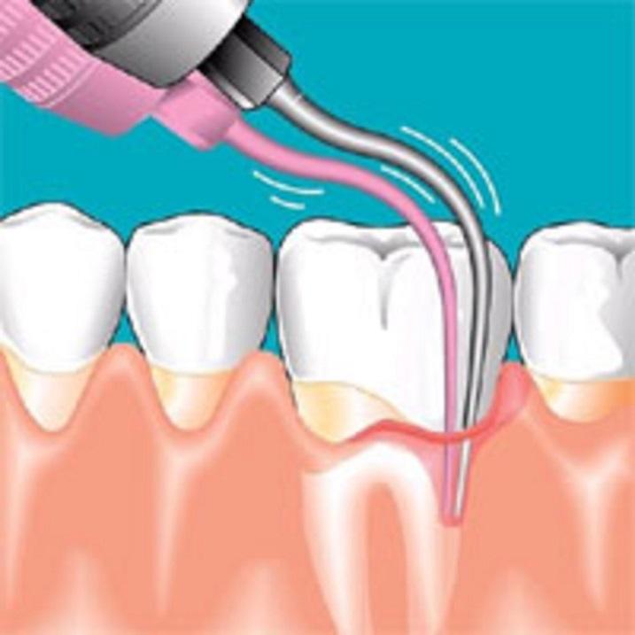 Что такое коагуляция десны. Зачем в стоматологи делают прижигание слизистых тканей