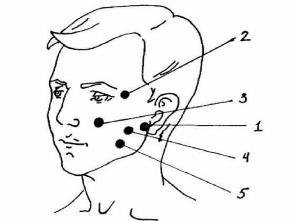 Поля воздействия при неврите лицевого нерва