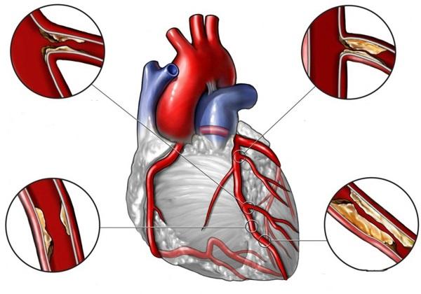 Различные степени стеноза коронарных артерий
