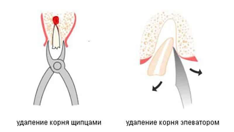 Как происходит удаление корня разрушенного зуба, и насколько это больно