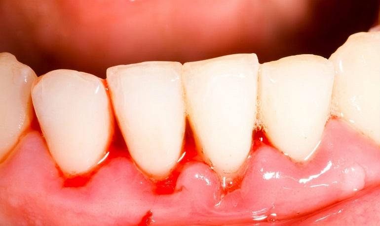 Что делать, если после отбеливания или чистки от камня ультразвуком болят зубы, и повысилась их чувствительность