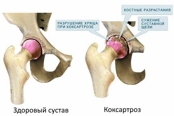 Тазобедренный сустав в норме и при коксартрозе