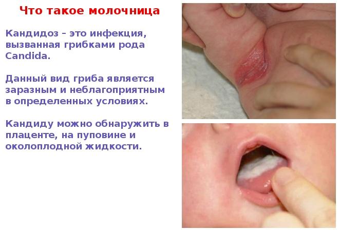 Почему появляется молочница у детей во рту, и как её лечить