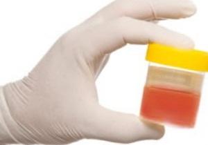 эритроциты в моче повышены у взрослого о чем это говорит