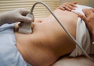 подготовка к узи мочевого пузыря у женщин